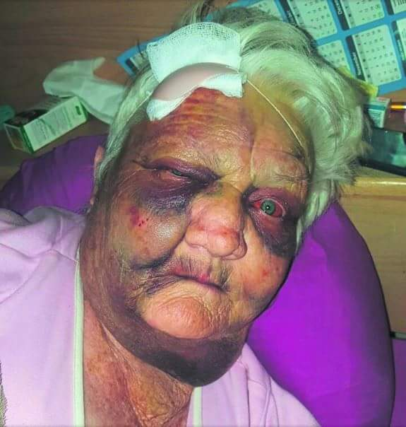 #ATTACK: THE determination to survive and the grace of God is what saved a 72-year-old woman from Odendaalsrus from certain death