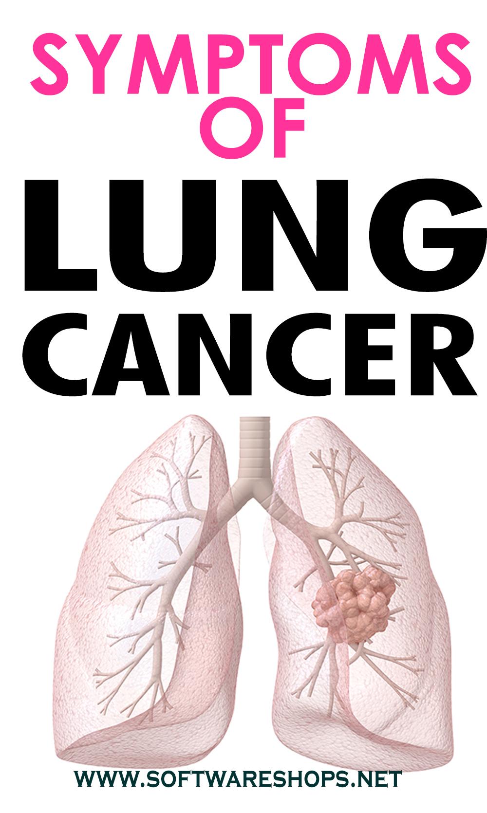 LUNGS CANCER SYMPTOMS IN FEMALE