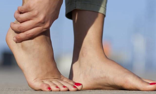تورم الساقين الأسباب والعلاج من المنزل