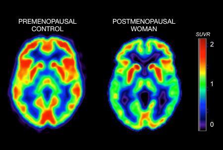 Risk of Alzheimer's linked to menopause