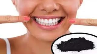 كيفية تبييض الاسنان بالفحم.