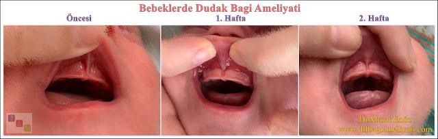 Bebeklerde Dudak Bağı Ameliyatı Öncesi ve Sonrası Fotoğrafları