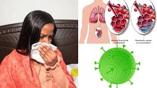 Débarrassez-vous des infections sans antibiotiques- coronavirus- virus- covid19