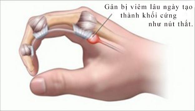 Nốt xơ trên gân gấp khi bị ngón tay cò súng