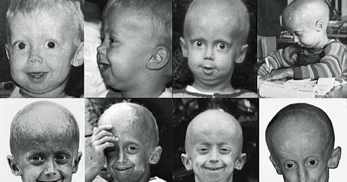 How Progeria Diagnosed