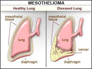 National Mesothelioma Awareness Day Wishes Images