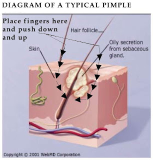 acne diagram face astridestella.info: skin care/grooming/make-up/cosmetics back acne diagram