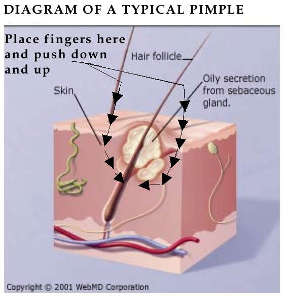 Zit popping diagram diagram astridestella info how to squeeze a spot correctly go www ccuart Gallery