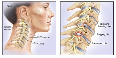 What Are The Risks Involved in Cervical Disc Surgery? How Can You Recover From It?