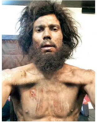 A shock photo of Randeep Hooda, who plays the title role in biopic  Sarabjit Singh has surfaced.   The photo shows a totally emaciated Randeep with wild hair and beard. He also has a rat bite on his chest.   This is how alleged Indian spy Sarabjit Singh probably looked in his last days in Pakistani jails.