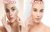 How to remove pimples fast,Face Wash for Remove Pimples,Beauty Tips