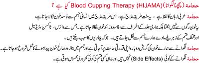 Hijama in Urdu