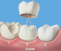 Cara Merawat Gigi Berlubang Dengan Benar Untuk Hilangkan Rasa Sakit