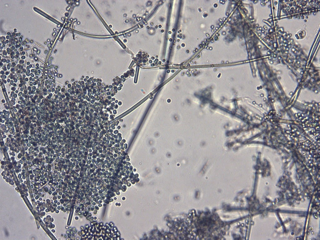 two years and three months of cyanobacteria chapter 22