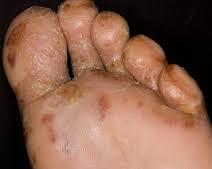 Mengobati gatal eksim Menahun di kaki dengan cepat tuntas