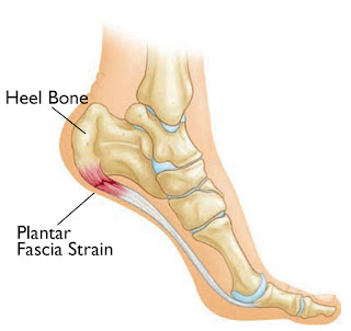 Side view of plantar-fascia ligament