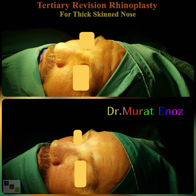 revision rhinoplasty, tertriary rhinoplasty for men istanbul, 3rd nose job, 3rd nose aesthetic surgery, micromotor assisted revision rhinoplasty, micro-motor assisted revision nose asthetic surgery