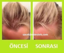 saç mezoterapisi öncesi ve sonrası 28