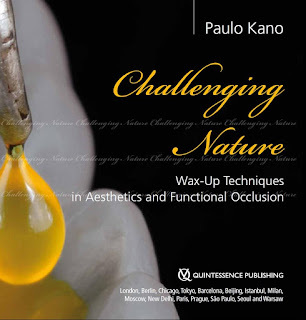 Challenging Nature Wax-up Techniques in Aesthetics and Functional Occlusion