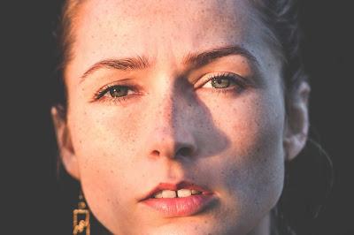 La imagen muestra una mujer con orejas normales, que se separan levemente de la cabeza en la vista frontal