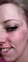 dry skin wrinkles tca peel diy acid muac glycolic lactic mandelic