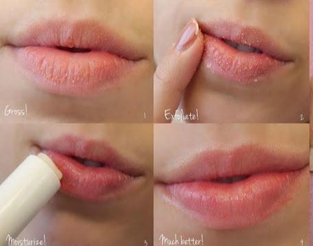 Traiter les lèvres brûlées à temps avec ces 4 remèdes naturels