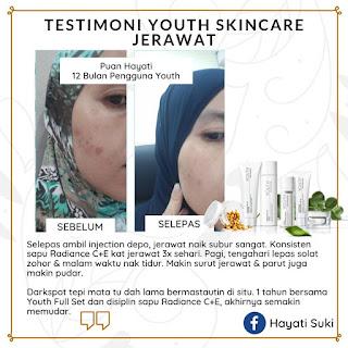Testimoni YOUTH Skincare Shaklee