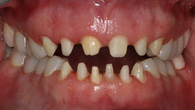 prepared tooth for crown