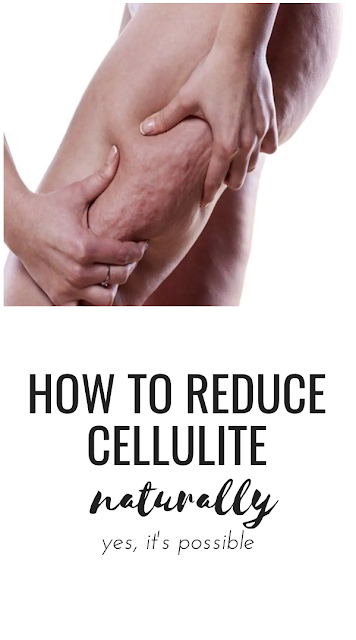 How to Reduce Cellulite Naturally