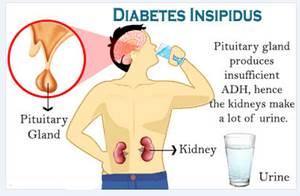 Obat Tradisional Diabetes Insipidus