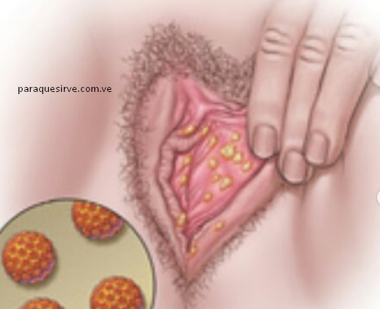 Como curar las verrugas genitales