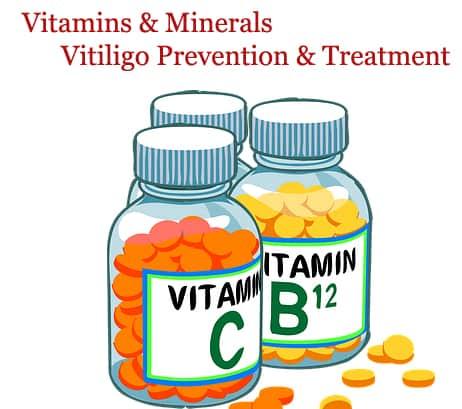 vitiligo versus vitamins and minerals