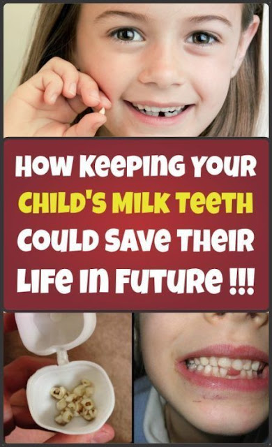 Keeping The Child's Milk Teeth Could Save Childs Life Someday