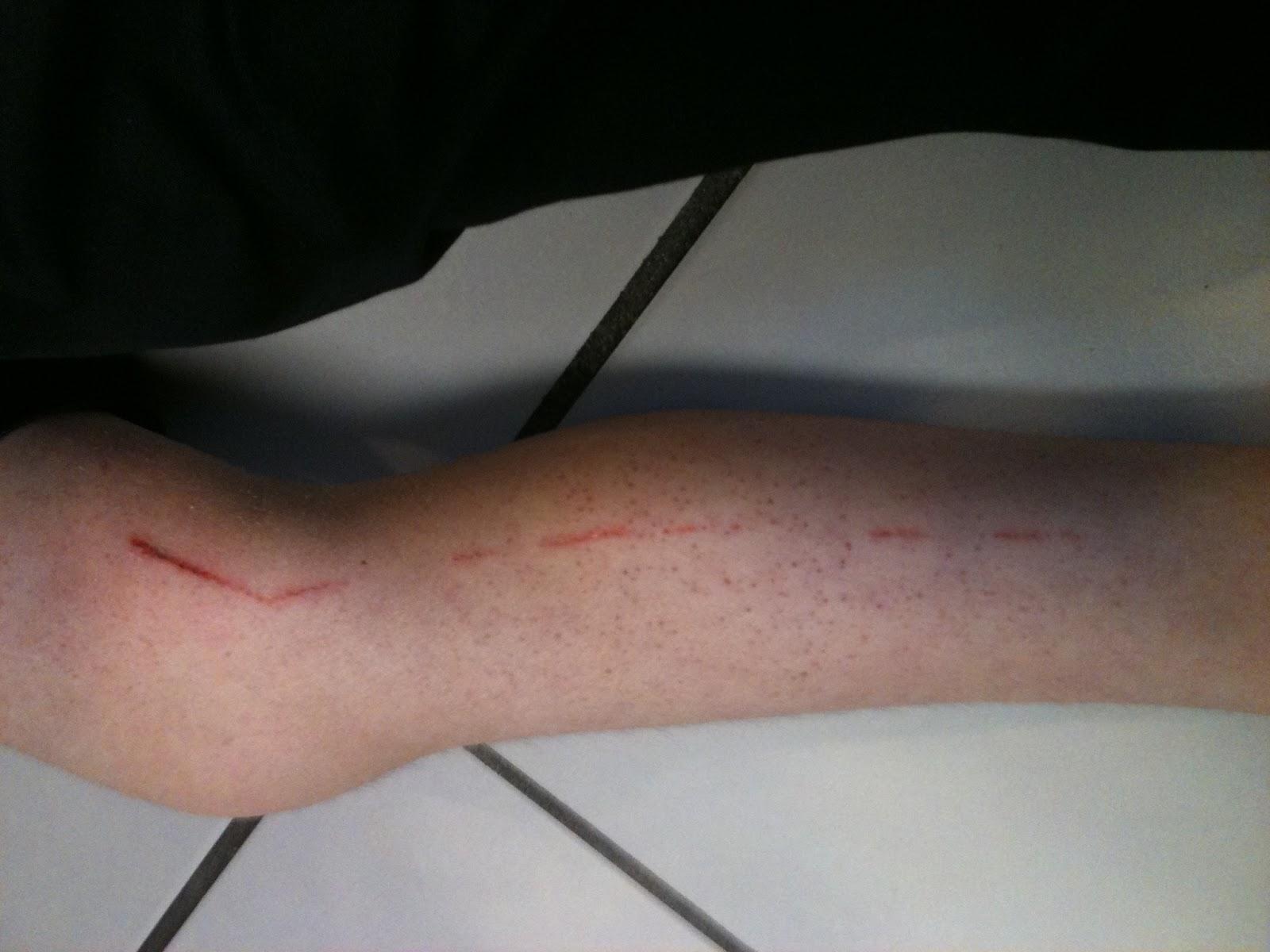 Cast saws CAN cut skin | Amber Argyle