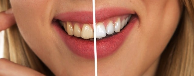 why in-office teeth whitening services professional dentist worth it