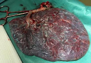 معلومات عن مرض المشيمة (داء الأرومة الغاذية)