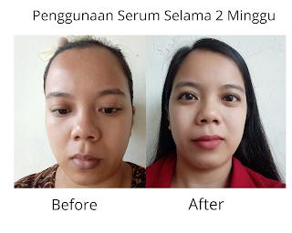 Hasil penggunaan serum selama 2 minggu pemakaian