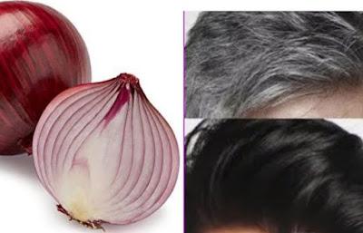 Cara Alami Menghilangkan Rambut Putih Uban dengan Bawang Merah