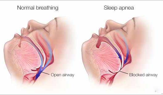 Nevertheless, the connection between nonexistence of regular blood pressure patterns in sleep apnea sufferers on a twenty four hour blood pressure recording cannot be a dependable evaluation test for apnea as lots of apnea sufferers have shown the retention of their blood pressure patterns. Additional significant outcome is refractory hypertension in sleep apnea sufferers.