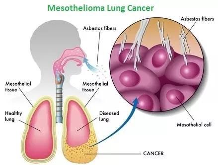 Mesothelioma:- Malignant Mesothelioma यह एक दुर्लभ प्रकार का कैंसर है।