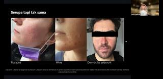 Gejala mask acne