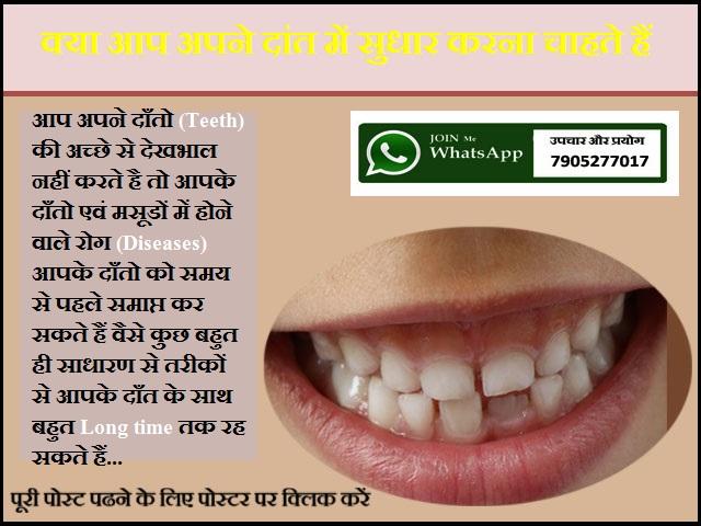 क्या आप अपने दांत में सुधार करना चाहते हैं