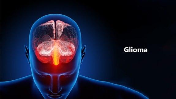 Glioma Tümör Hastalığı Nedir?