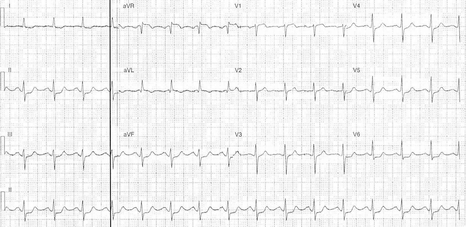 Pseudo Normalised T Waves Ecg Quest