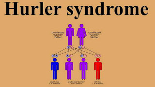 The photo showing the inheritance pattern of Hurler syndrome picture