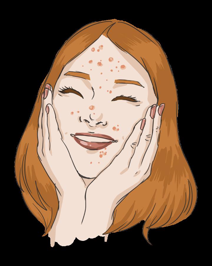 consejos-para-el-acne-bimbaysuscosas.com.jpg