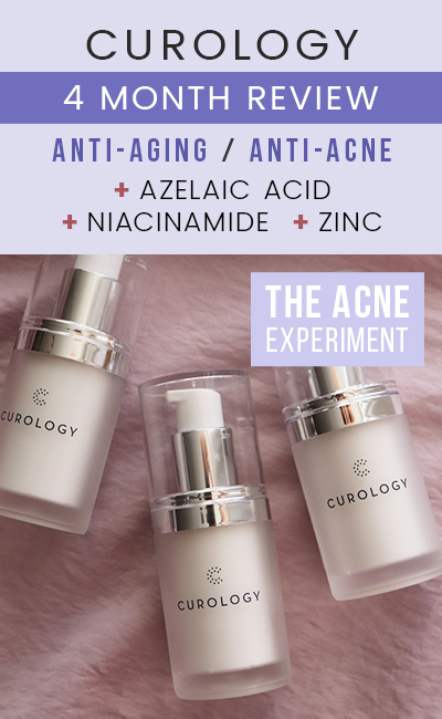 4 Month Curology Review - Azelaic Acid, Niacinamide, Zinc - The Acne Experiment