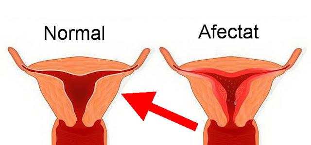 tulburarile menstruale se pot datora si deficientelor de magneziu