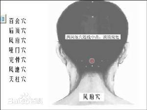 Feng Fu acupuntura con hielo en la nuca
