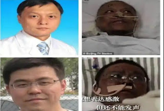 Odd effects of corona: two Chinese doctors changed skin after liver damage